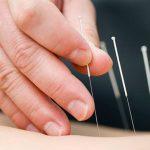 et eksempel på behandling med akupunktur